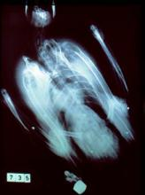X-ray of pink-footed goose with embedded shotgun pellets